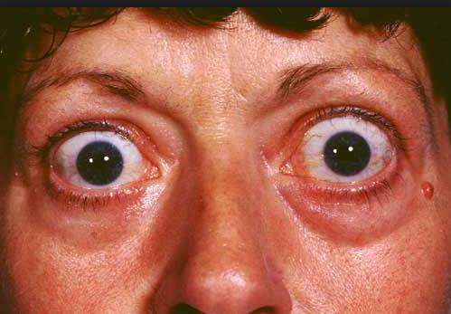 penyakit tiroid mata